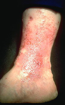 Stasis Dermatitis from the Medical Library of Utah