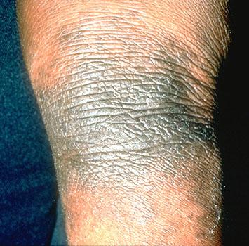 Lichen Simplex Chronicus Treatment … – Medscape Reference