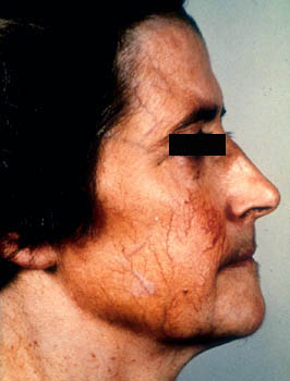 Implants for facial fat atrophy