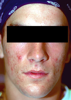 Mild acne vulgaris