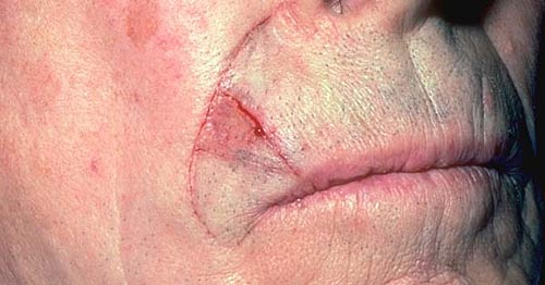 basal cell carcinoma treatment, Human Body
