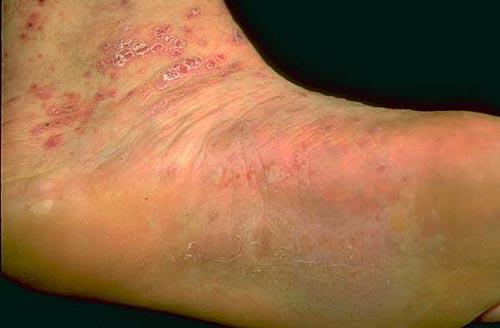 Lichen planus (lichen ruber planus) (patientenfolder)