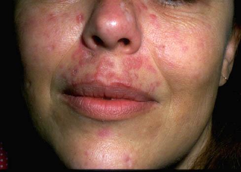 lupus - photo #22