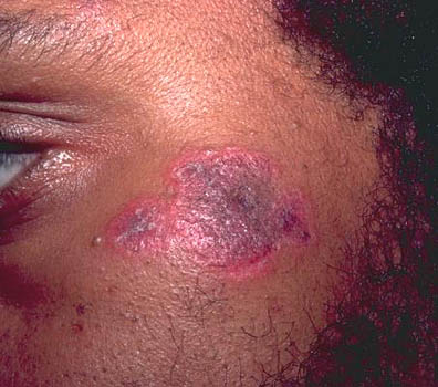 drug rash pictures