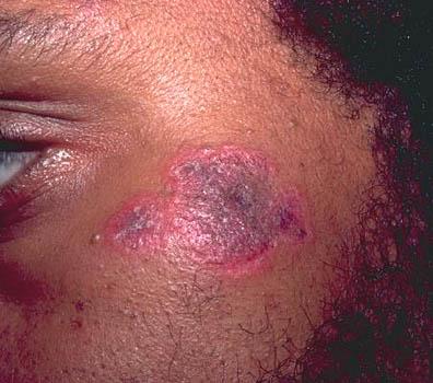 drug rash pictures
