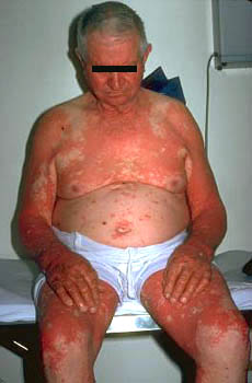 Pityriasis - Wikipedia