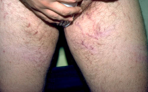 Male with stretch marks groin - Doctor answers on ...
