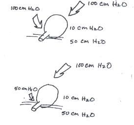 molimina gravidarum