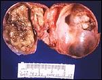 Human Reproduction, Seminars: Common Causes of Ovarian ...