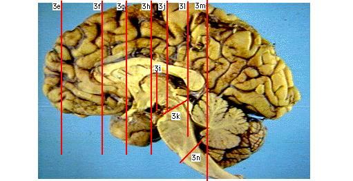 Brain Ventricular System 3D