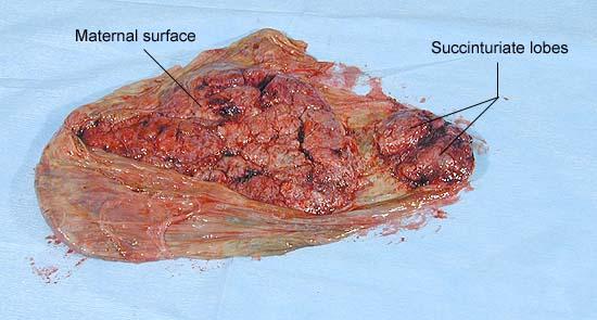 succinturiate lobes