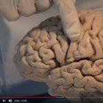 Neuroanatomy Video Lab
